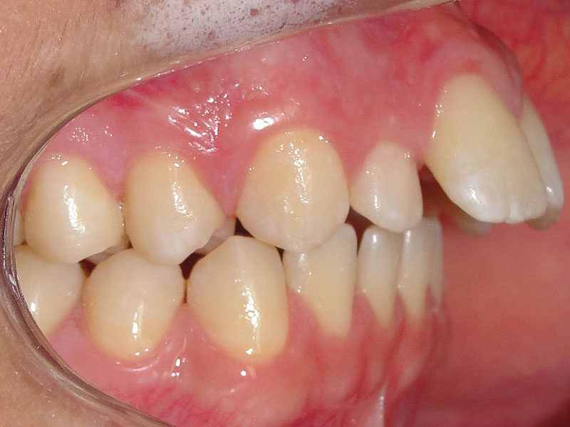 Tratamentos preventivos de maloclusão Dentária